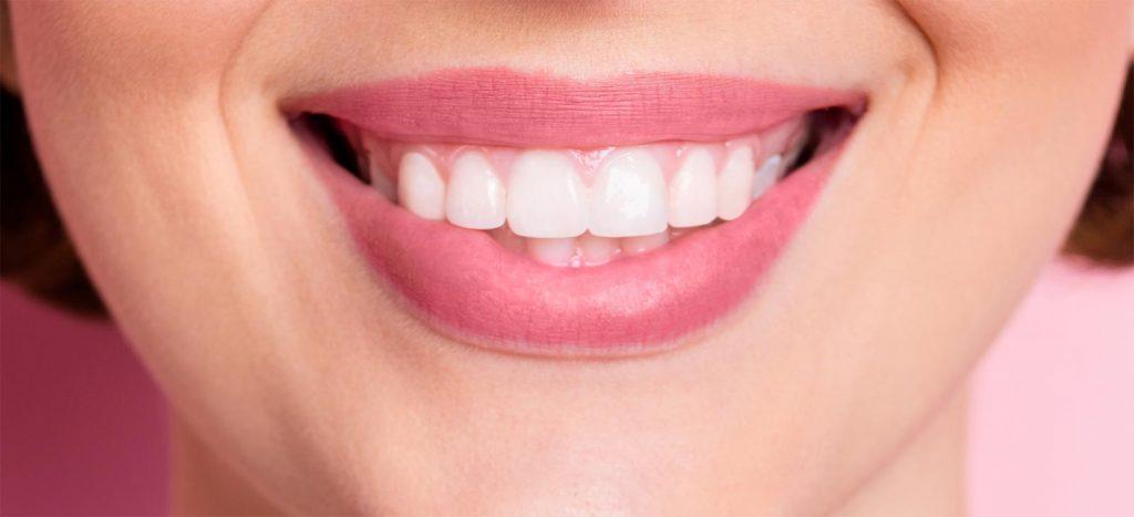 Carillas lumiers en odontofamily
