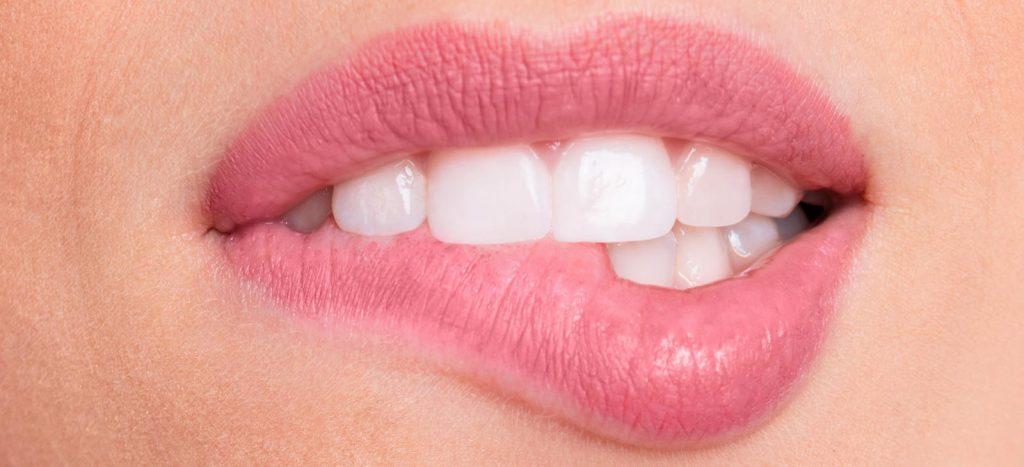 Carillas de porcelona en odontofamily