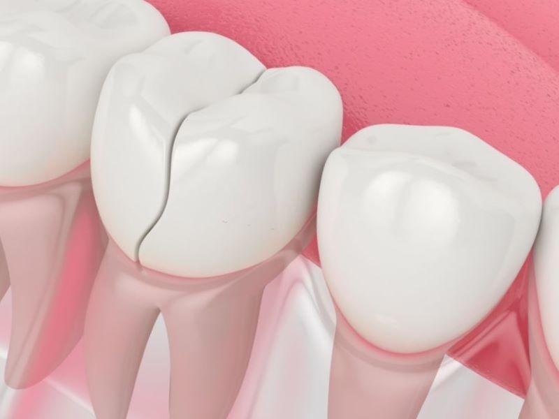 fisura diente