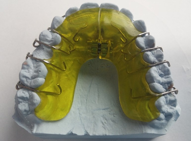 uso de retenedores despues de la ortodoncia