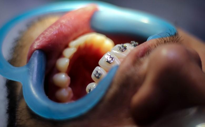 visitar al dentista despues de la ortodoncia